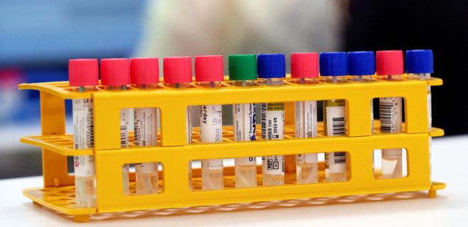В Херсонской области у младенца обнаружили коронавирус - ОГА