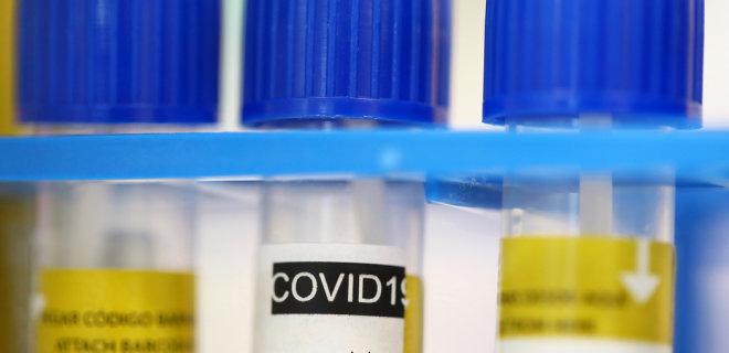 Коронавирус. Заболели более 1 млн, выздоровели почти 211 000: последние данные